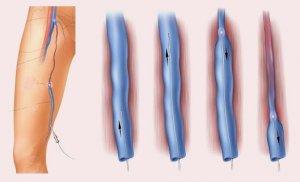 Испытывается также перкутанная лазерная ангиопластика (удаление бляшек с помощью вмонтированного в катетер...