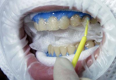Где купить для отбеливания зубов
