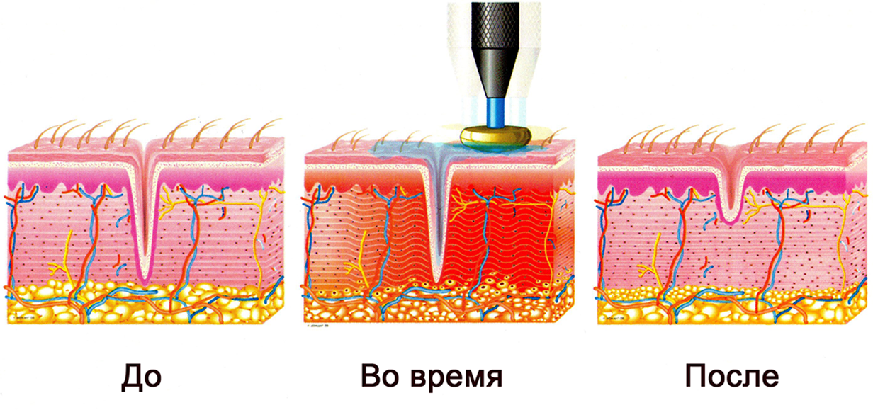 Инфракрасный термолифтинг отзывы